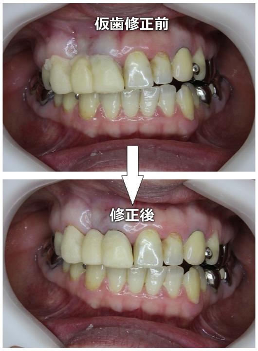 仮歯の修正前後