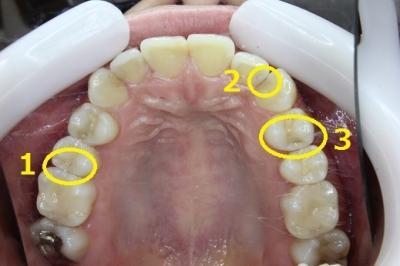 上の歯の初期虫歯