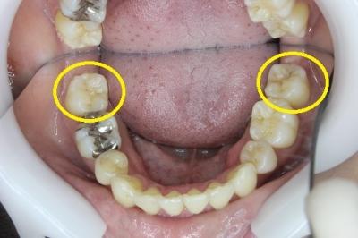 下の奥歯の初期虫歯