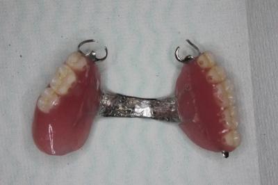 完成した入れ歯(上顎)
