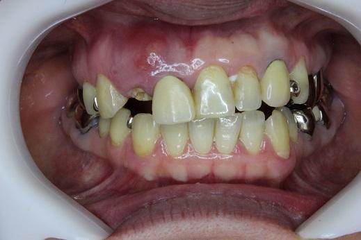 前歯がとれた口の中