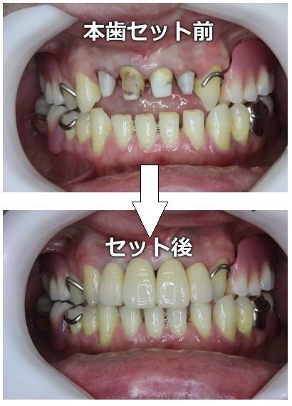 本歯をセットした状態