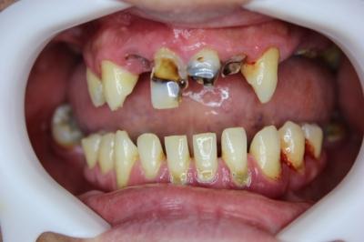 たくさん虫歯がある口の中