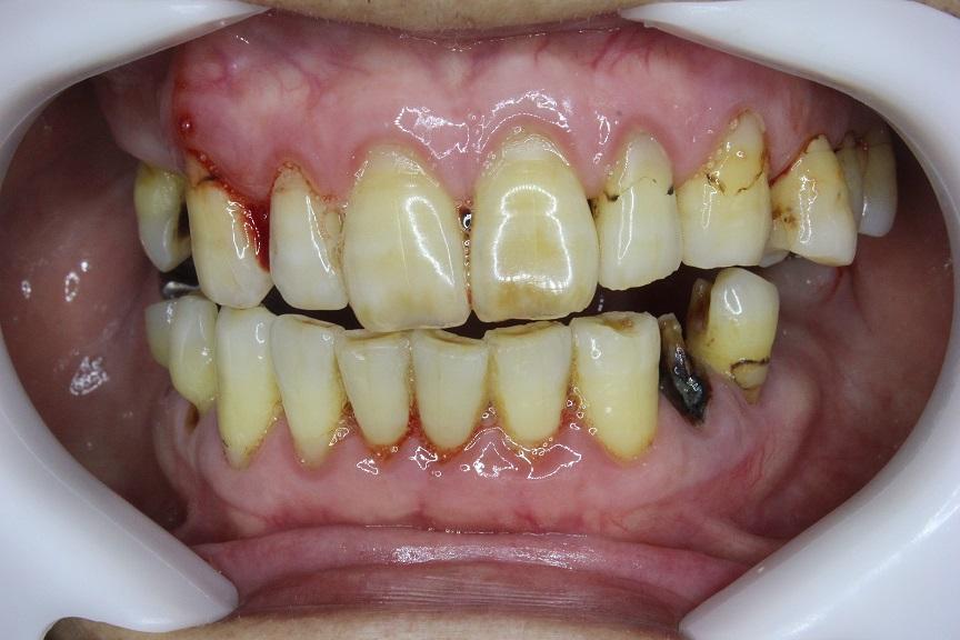 中等度~重度の歯周病になったハグキ