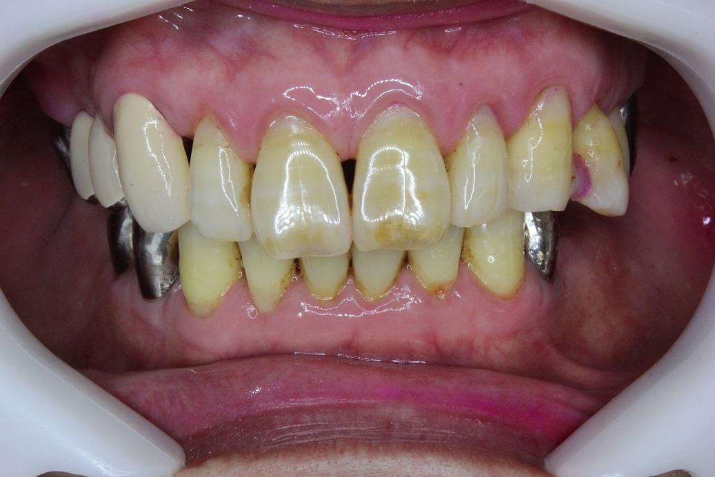 仮歯を装着した状態 正面観
