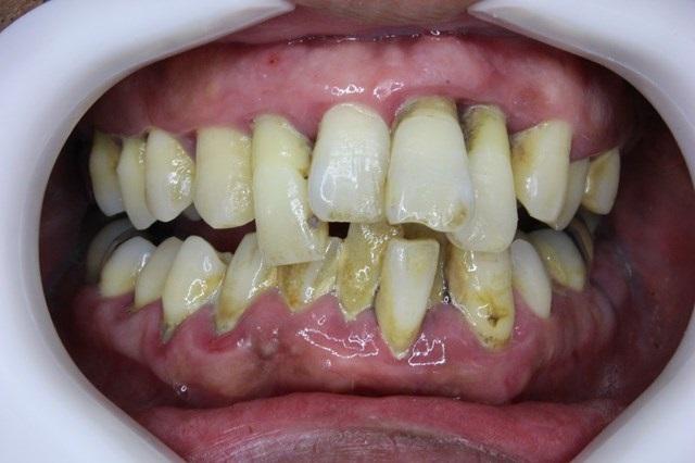 歯石が大量についた口の中
