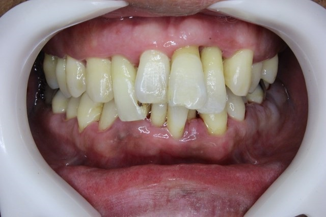 歯周基本治療の終了後