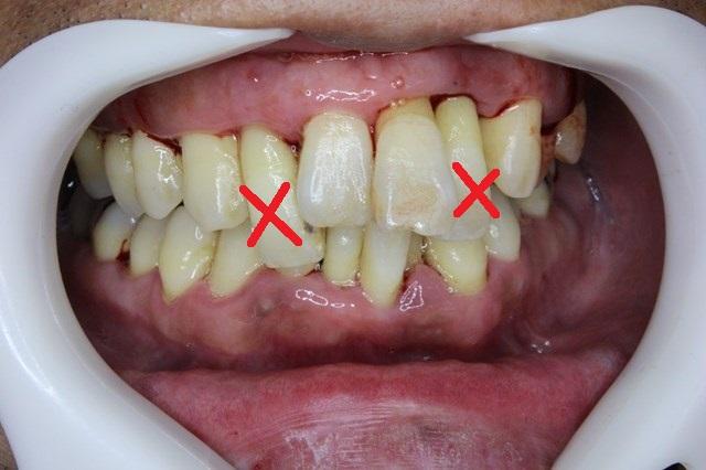 歯周病によって保存不可能な歯