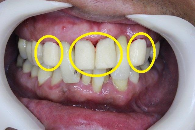 第2段階の仮歯