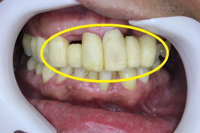 修理した仮歯