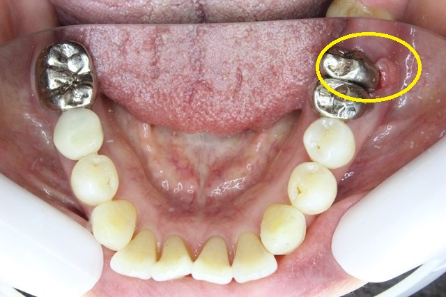 歯根破折でハグキが腫れた状態