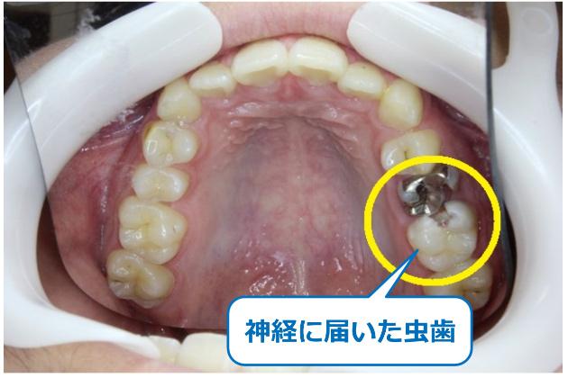 大きい虫歯