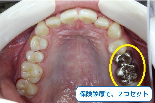 保険診療で銀歯をセット