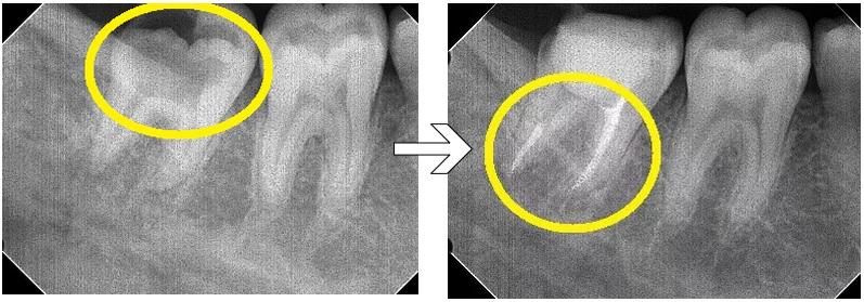 レントゲン上の虫歯 ⇒ 根管充填後
