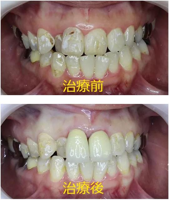 少数歯セラミック治療前 少数歯セラミック治療後