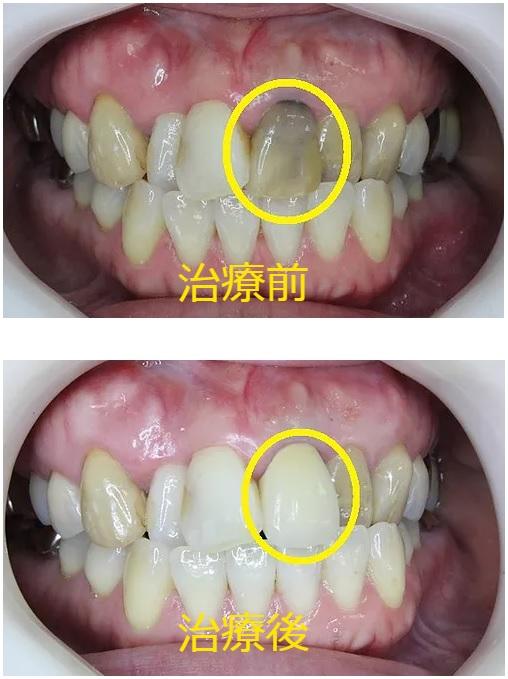 変色歯へのセラミック治療前  変色歯へのセラミック治療後