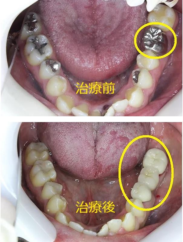 奥歯のセラミック治療前 治療後