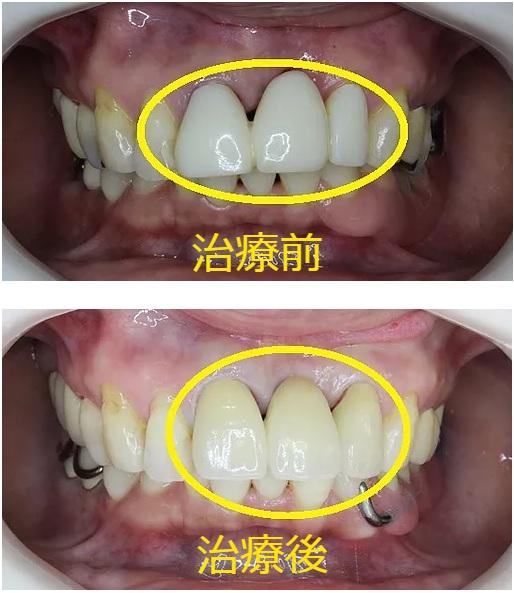 前歯ブリッジのセラミック治療前 治療後