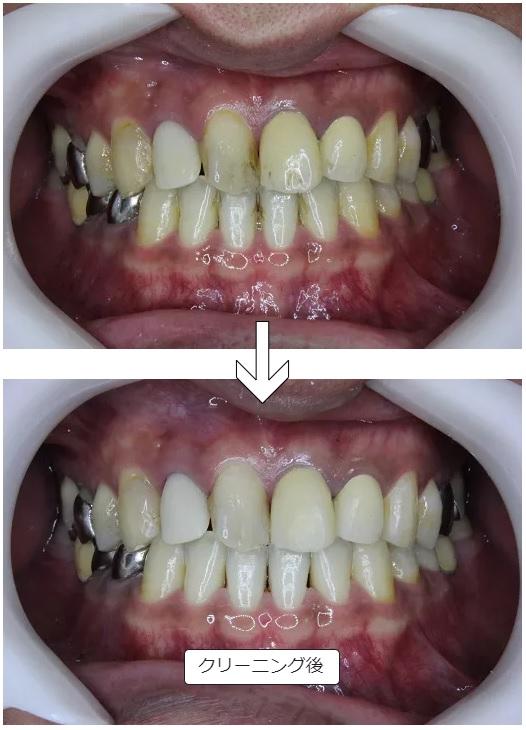 歯のクリーニング 術前術後