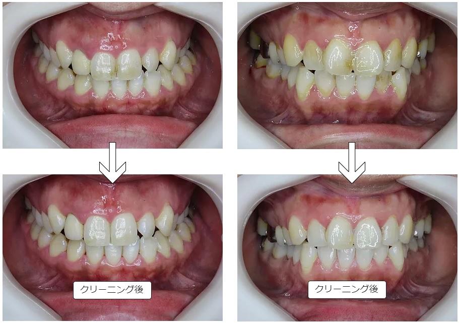 歯のクリーニング後