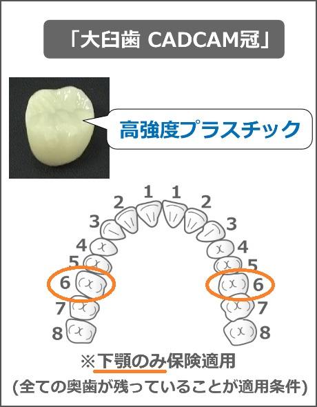 大臼歯CADCAM冠の適用条件