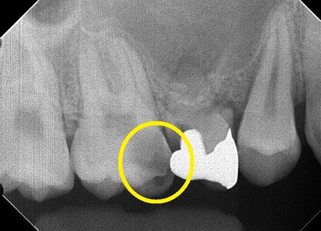 虫歯のレントゲン写真