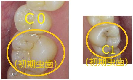 初期虫歯の写真