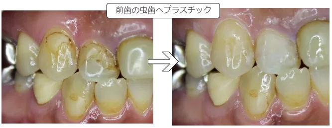 前歯へのプラスチック治療
