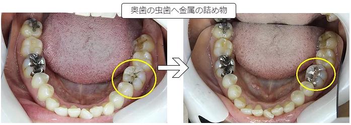 奥歯への金属の詰め物
