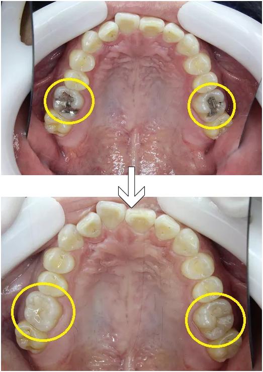 左右奥歯の金属をプラスチックで白く詰めなおし
