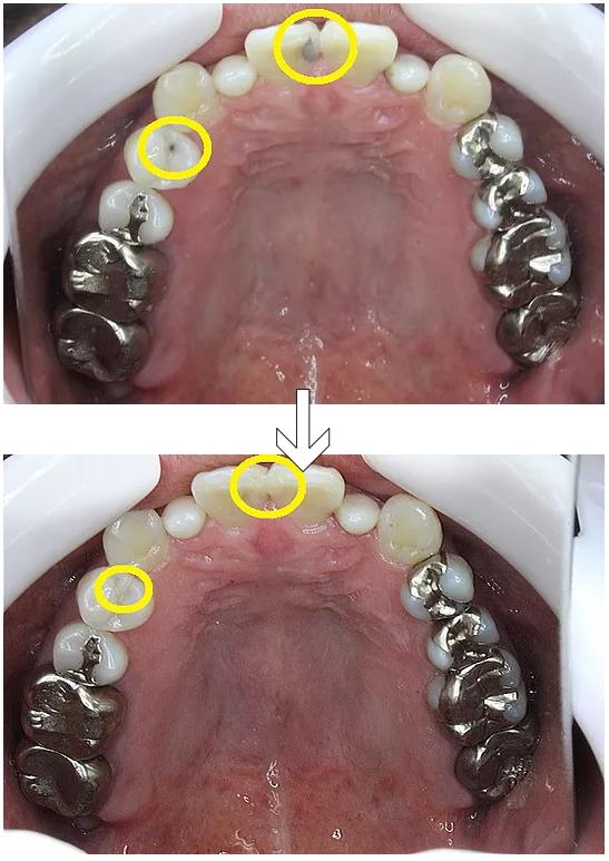 虫歯をプラスチックで治したところ