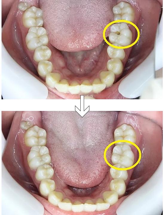 虫歯を除去し、プラスチックで修復した状態