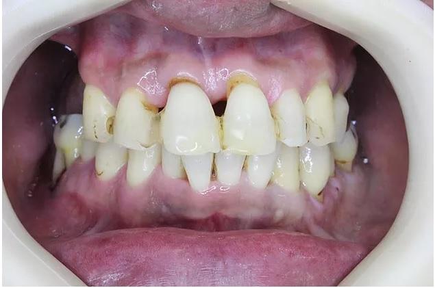 歯周病が治ったハグキ
