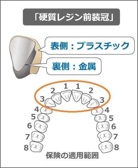 硬質レジン前装冠の適用部位