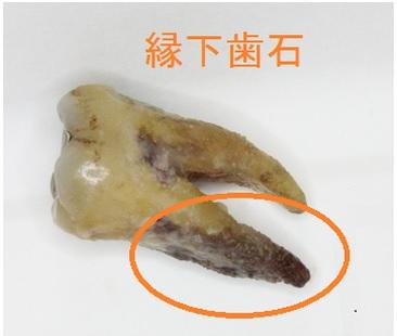 ハグキの下の歯石
