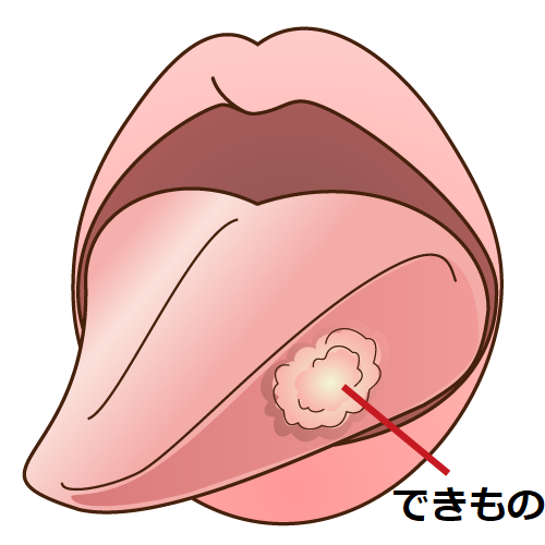 舌の出来物