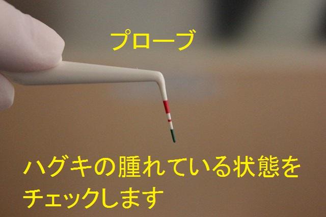 歯周病検査用のプローブ