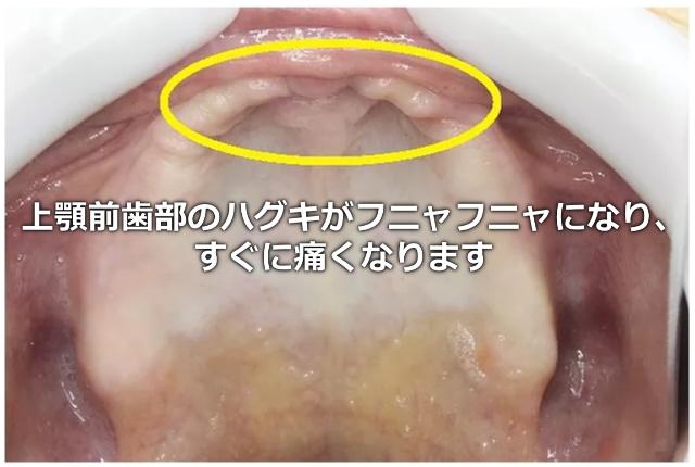 上顎のフラビーガム