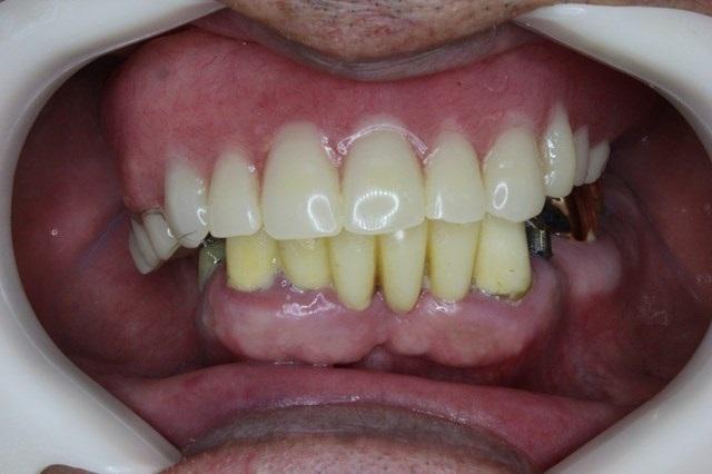 入れ歯症例 正面観