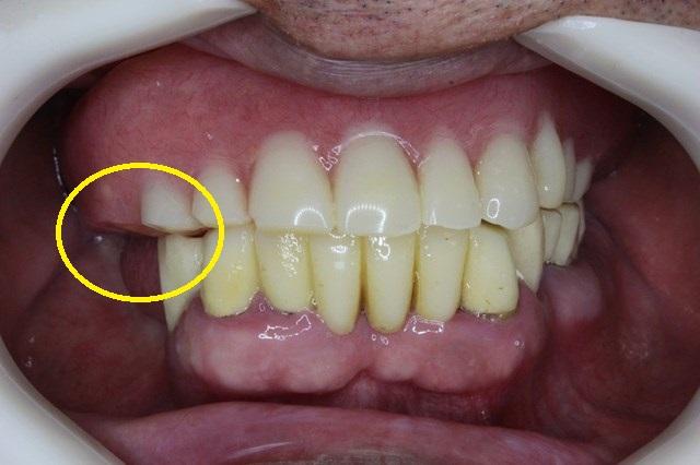 上顎義歯の咬合平面を修正