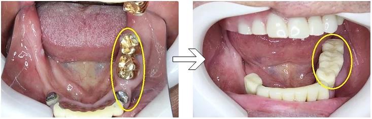 修正前の下顎ブリッジ⇒仮歯に置き換えた状態