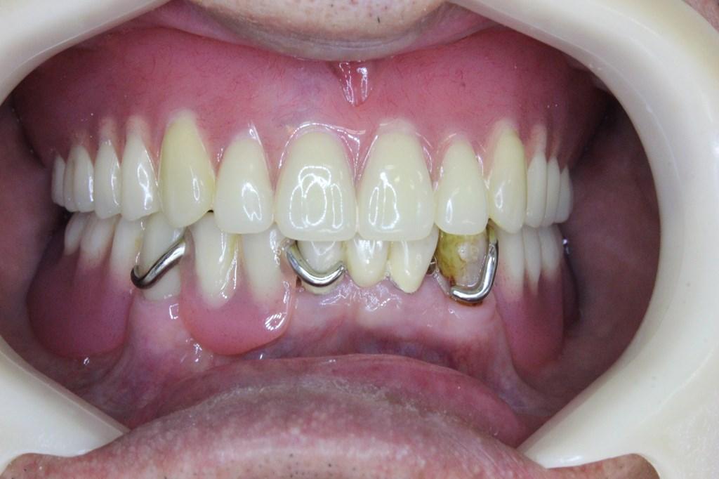 使用中の入れ歯