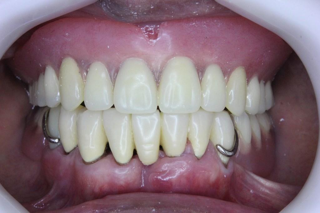 使用中の上下の入れ歯
