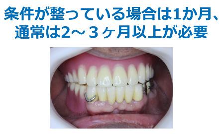 入れ歯治療に必要な期間