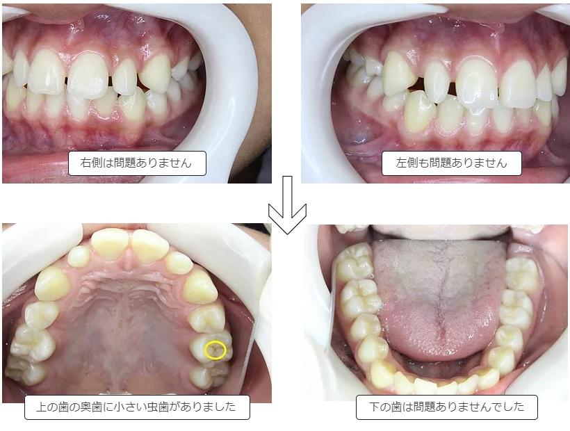 定期健診で見つかった虫歯