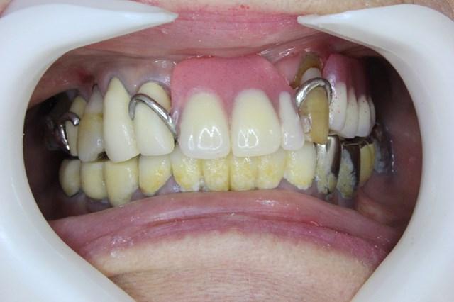部分入れ歯を装着