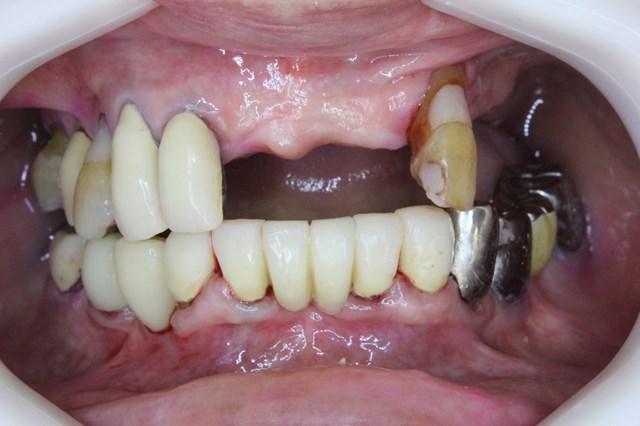 クリーニング後の歯