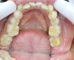 高崎 歯科 歯医者