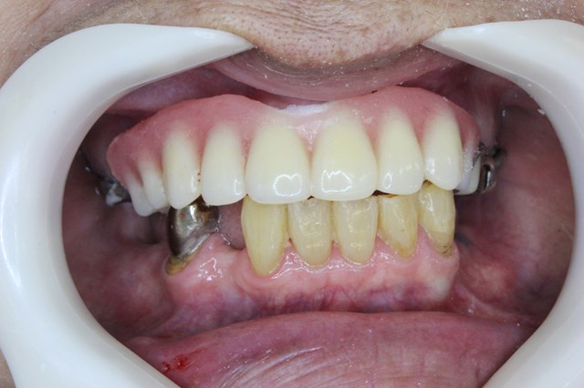 即時義歯のセット