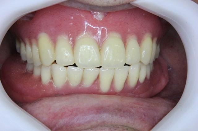 入れ歯を噛んだところ